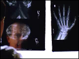 Video Clip - Doctor looks at the x-ray charts